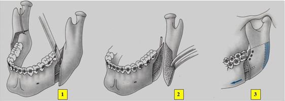 figura2.jpg